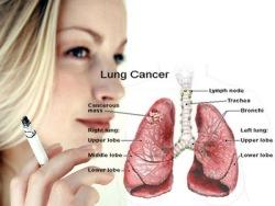 longkanker-roken